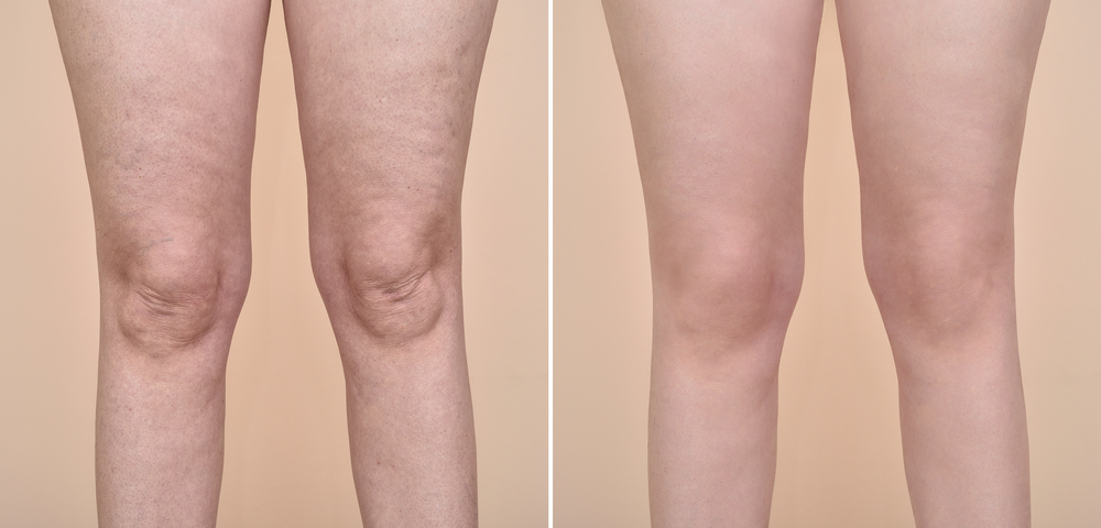 Does liposuction reduce cellulite?