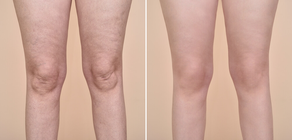Legs of a woman before and after anti cellulite treatment