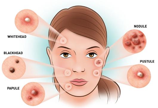 Acne Treatment Santa Monica – SepiSpa