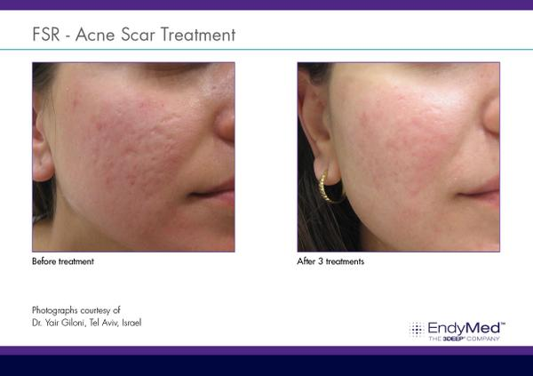EndyMed Fractional Resurfacing for Acne