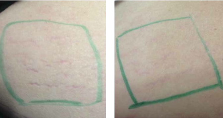 Before & After MicroPen® treatment